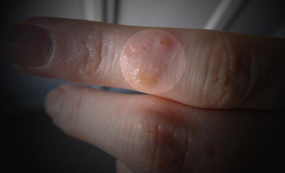 dermatitis_on_fingers