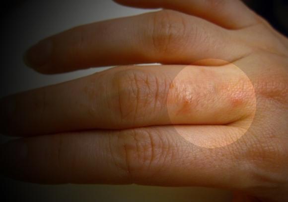 irritated_dermatitis