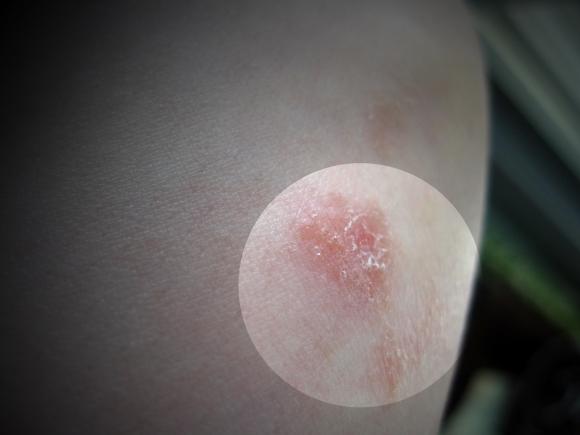 dermatitis_on_elbow