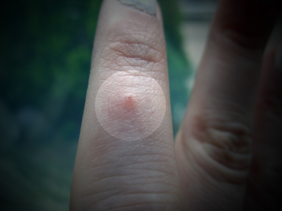 dermatitis_on_finger