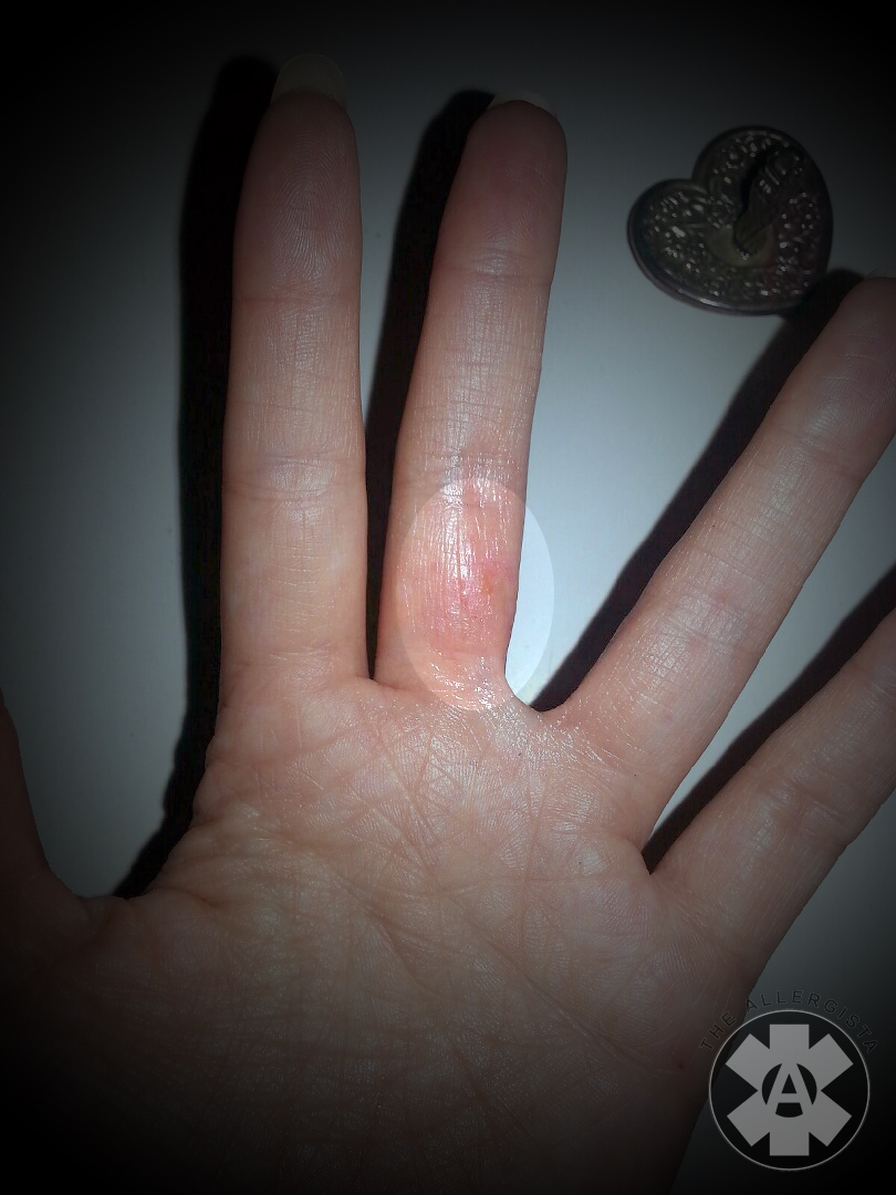 Allergic Reaction To Wedding Rings Titanium Tungsten
