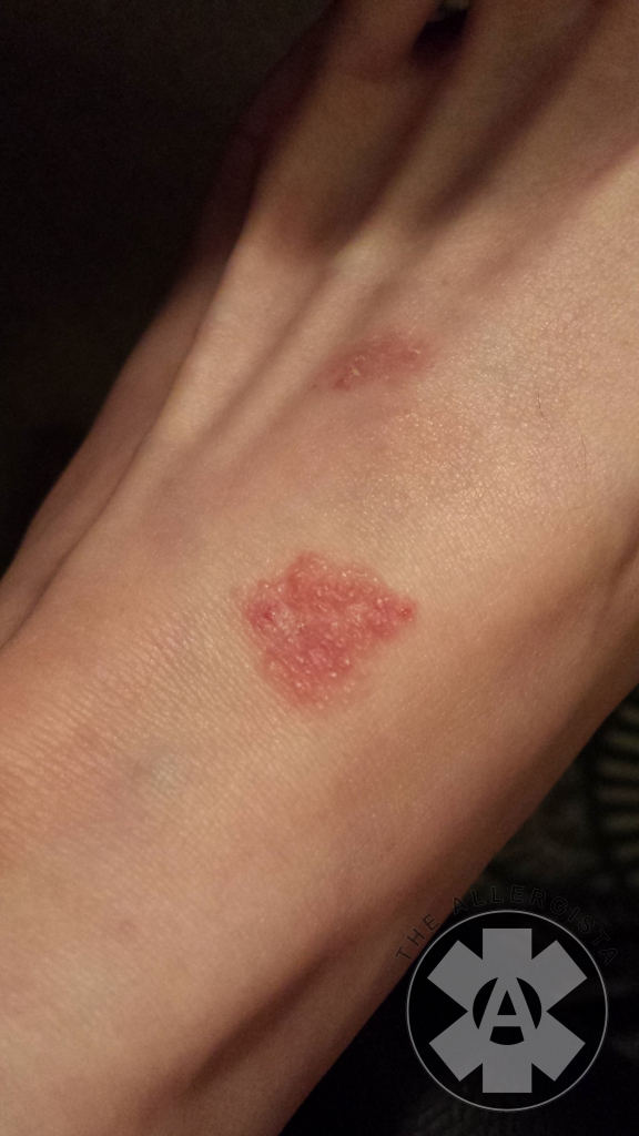 Allergic_contact_dermatitis_on_foot Bumps_healing_on_foot