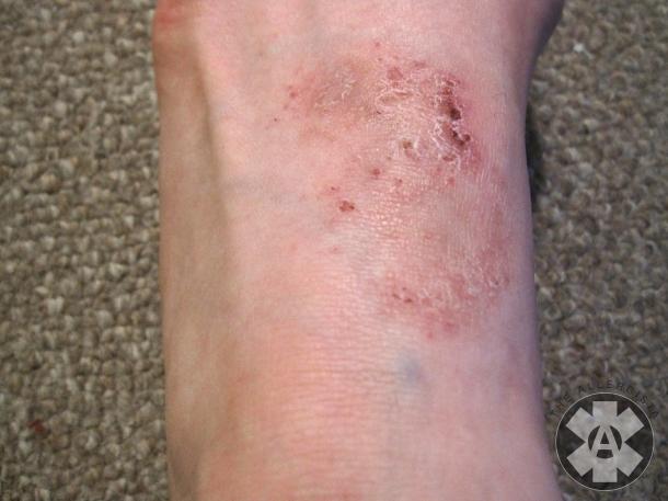 eczema_on_foot